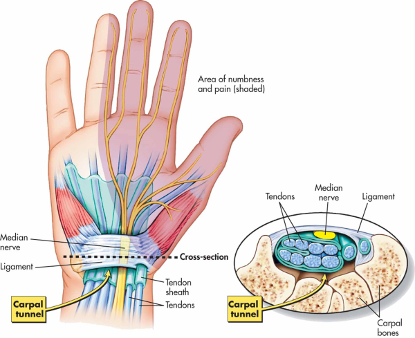 Effective Carpal Tunnel Treatment