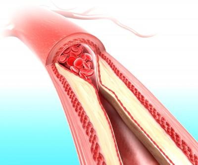 Arteries_clogging